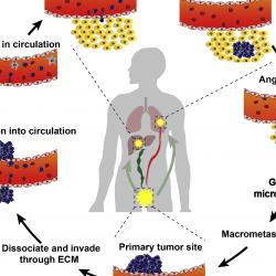 Read more at: Nanotechnology for the treatment of metastatic cancer